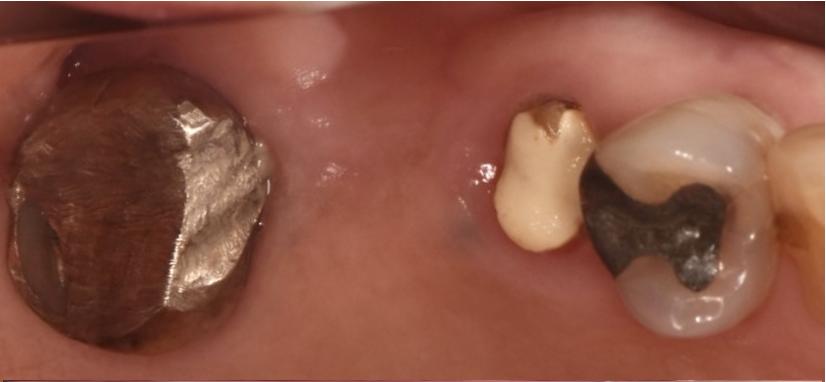 上顎の奥歯にインプラント治療をする事で噛み合わせを回復した症例