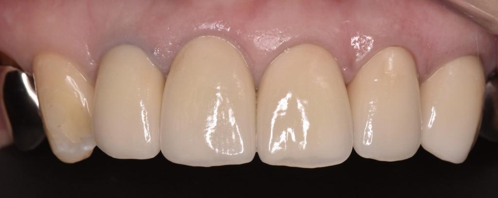 上の前歯の審美不良をオールセラミッククラウンで改善した症例