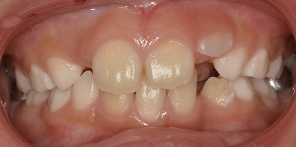 小児期から矯正する事により歯列不正を早期に改善した症例